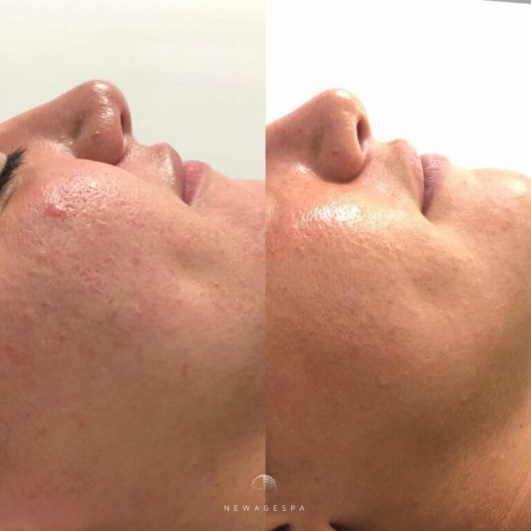 smooth skin results after hydra dermabrasion