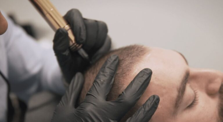 scalp micropigmentation training course online class produucts available