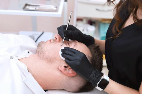blackhead and pimple removal in montreal by beauty spa technician on man facial blemishes