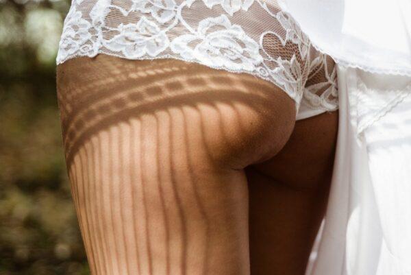 photo de la cellulite des fesses