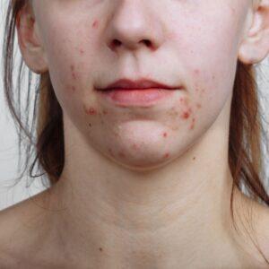 acné sur la peau du client