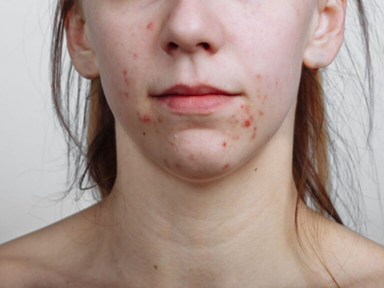 acne on the skin of client