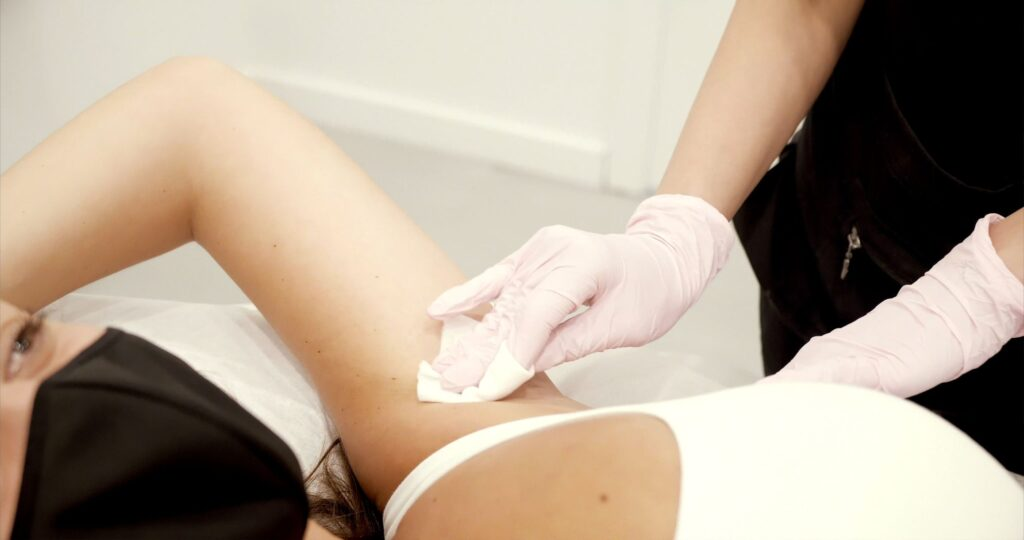 preparing for laser hair removal face underarms and body