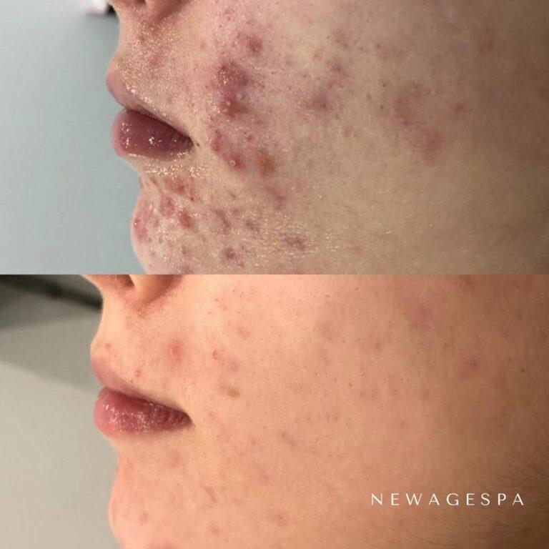 traitement de l'acné à l'aide d'un peeling chimique à montréal