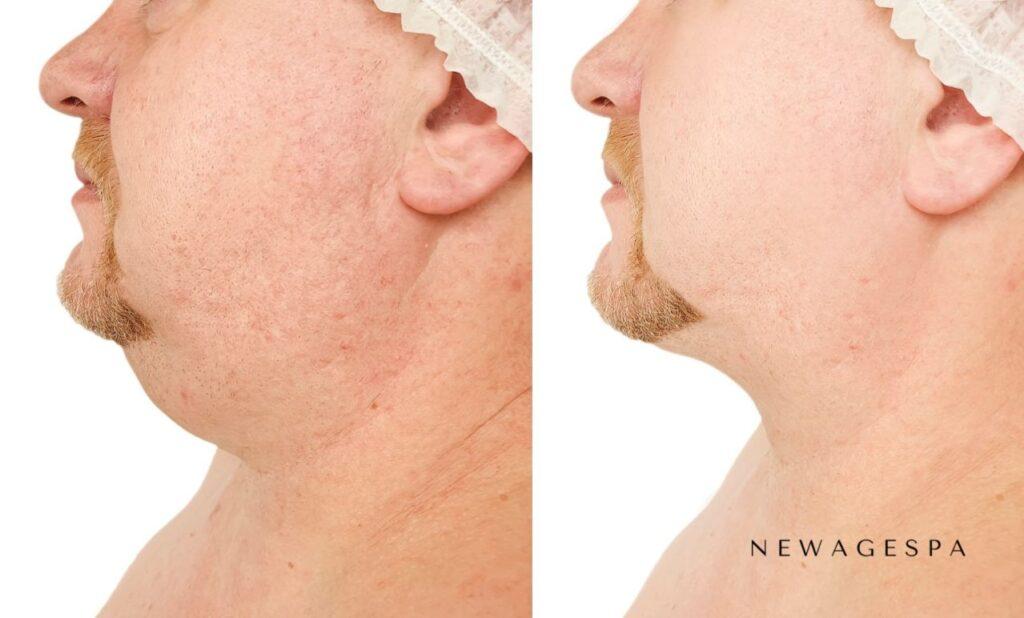 traitement belkyra double menton sur le contour du cou des hommes