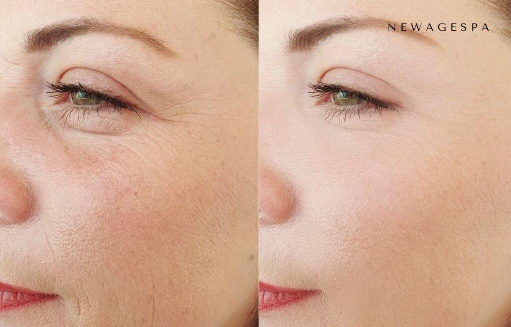 produits de comblement cutané avant et après les résultats pour les sous-yeux et les rides