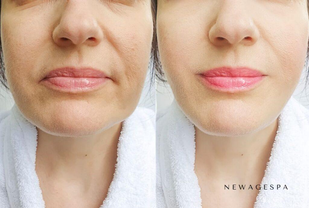 produits de comblement cutané pour les plis nasogéniens avant après résultats chez la femme