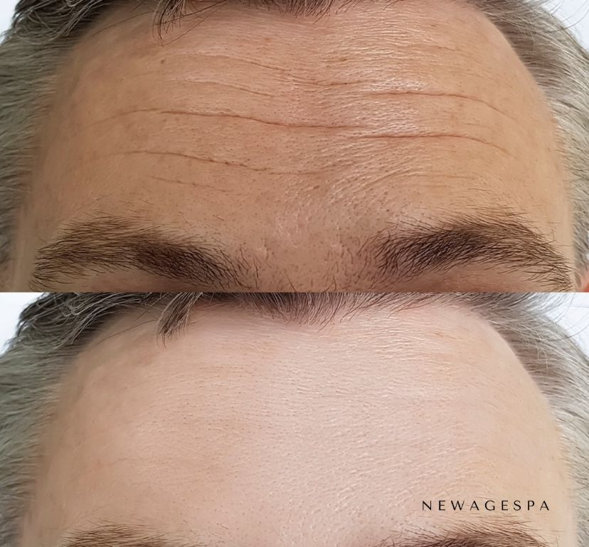 botox treatment results picture on man forehead wrinkles