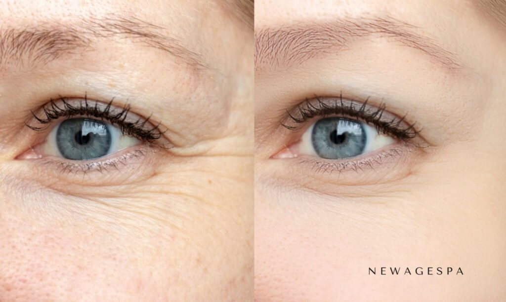 botox crows feet wrinkles results before and after on woman