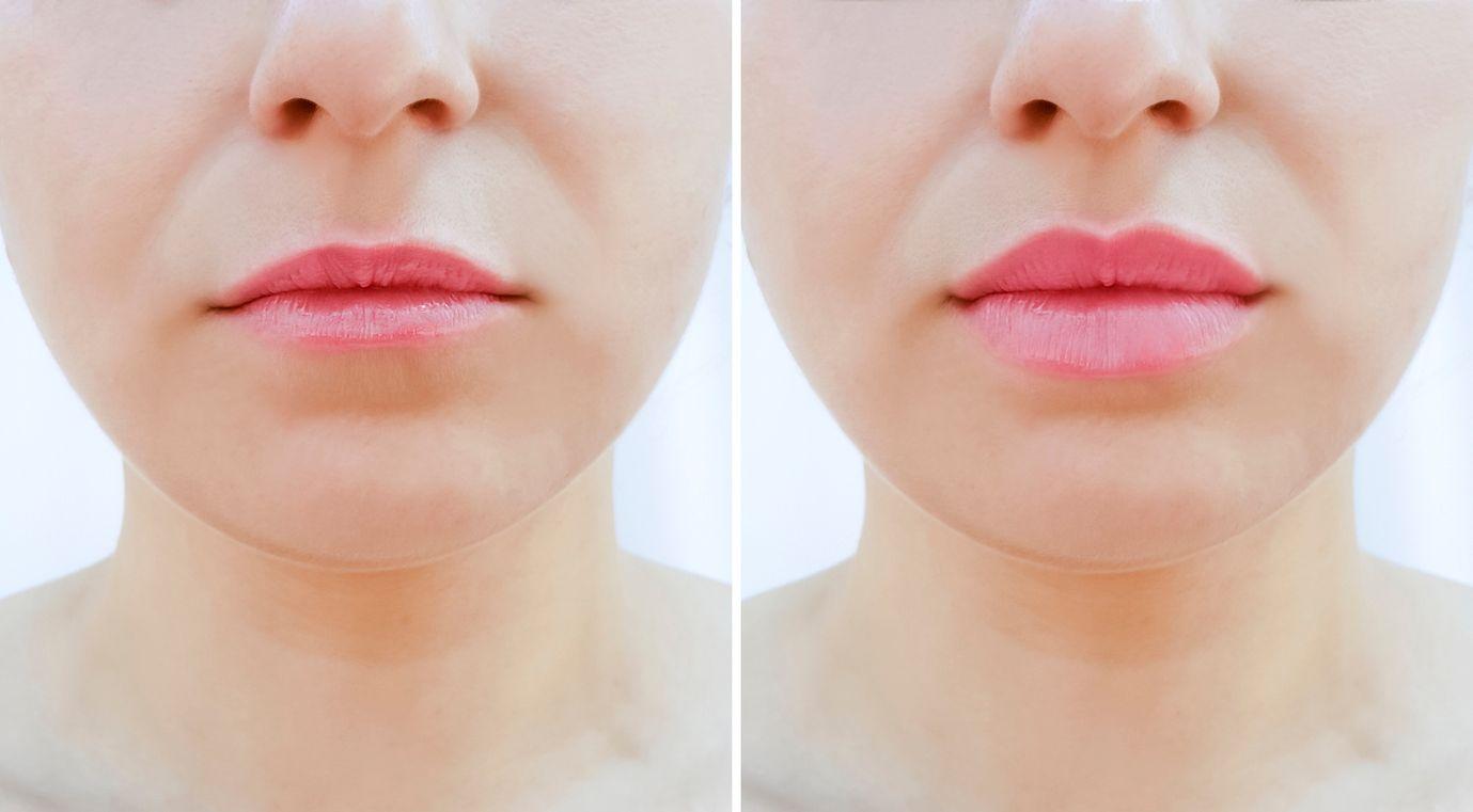 résultats d'injections de lèvres sur une femme
