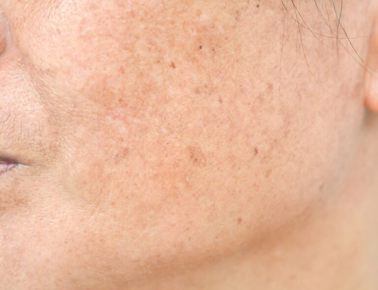 melasma on face from sun damage that can be removed with laser treatment at new age spa in montreal