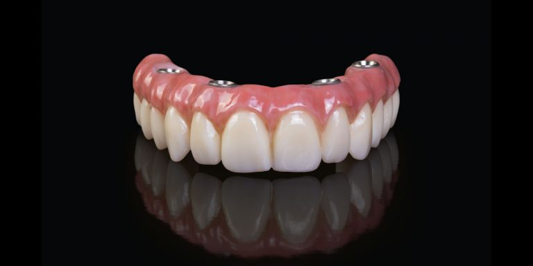 How Many Implants Are Necessary For A Full Mouth Prosthesis