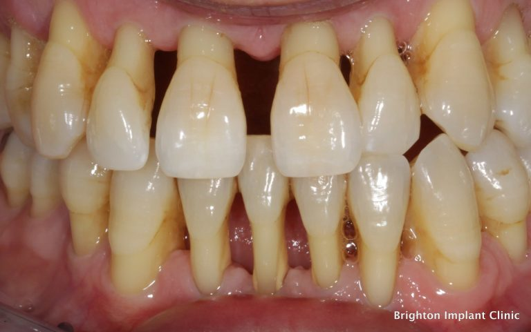 What Is Gingival How To Treat Gingival Disease