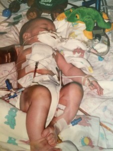 Right after open heart surgery