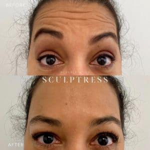 Botox image 1