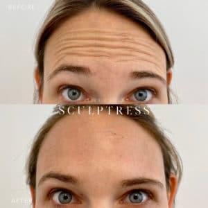 Botox Image 7
