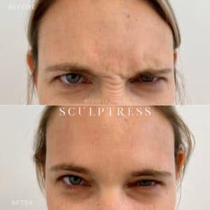 Botox Image 6