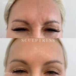 Botox Image 4