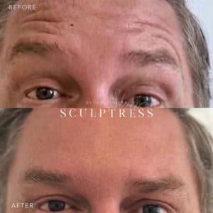 Botox Image 3