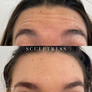 Botox image 2