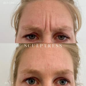 Botox Image 8