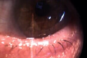 Eyelid After Plastic Surgery