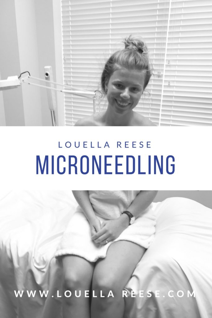 Microneedling Experience   Louella Reese   Charlotte Life & Style Blog
