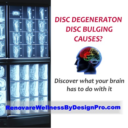 What Causes Disc Degeneration & Bulging?