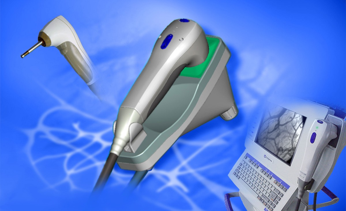 Medical scanner developed in part by Art of Mass Production, a San Diego based plastics engineering company