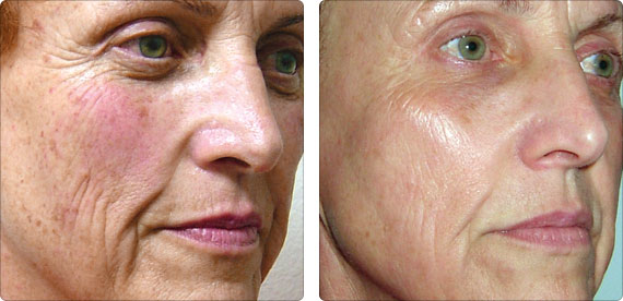Anti Aging Light Therapy at Spring Mist Spa Milton