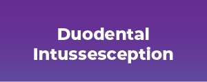 Duodental Intussesception