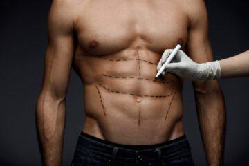 Liposucción masculina