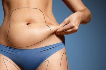 abdominoplastia en guadalajara