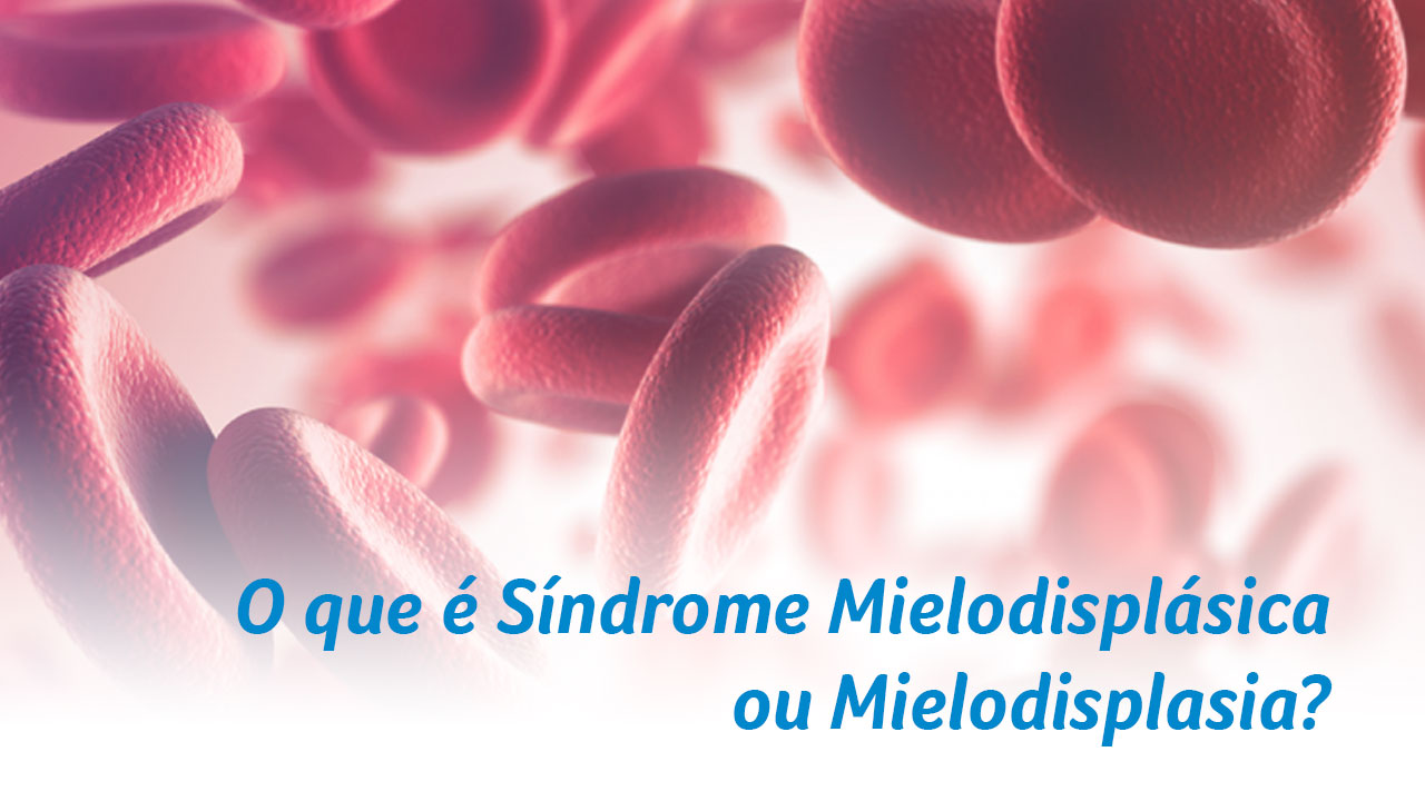 O que é Síndrome Mielodisplásica ou Mielodisplasia?
