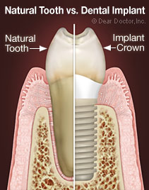 natural-tooth-vs-implant