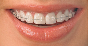 radiance_clear_braces_leeds_orthodontists_clarendon_dental_spa
