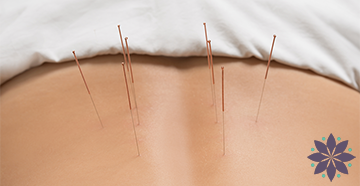 Annapolis Acupuncture Services Featured HP