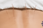 Annapolis Acupuncture Services