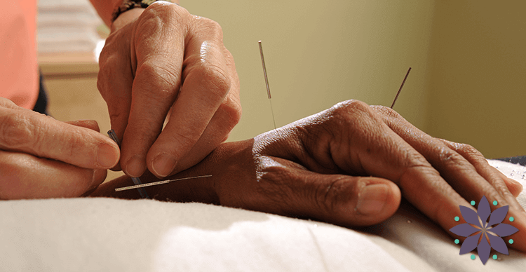 Why Acupuncture