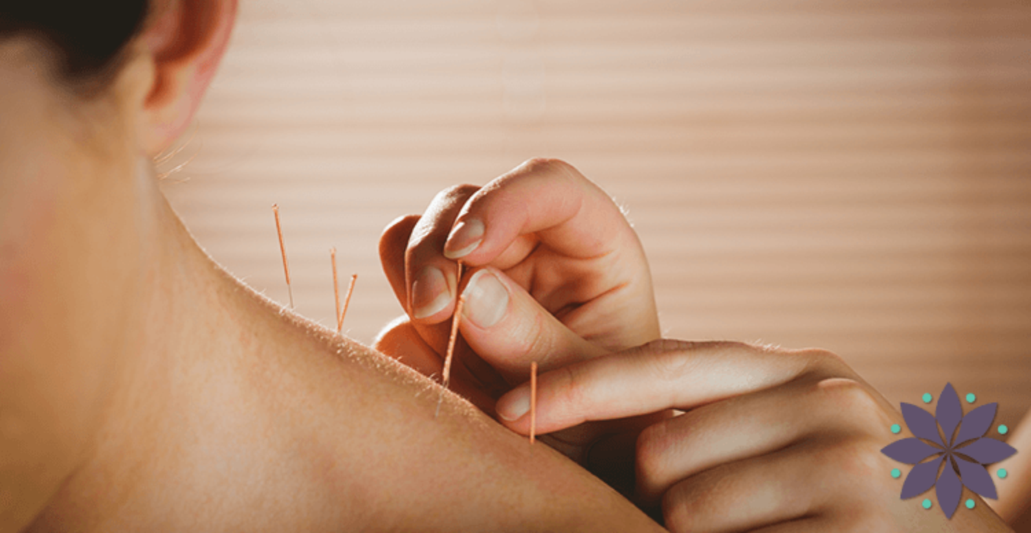 How many Acupuncture treatments will I need?