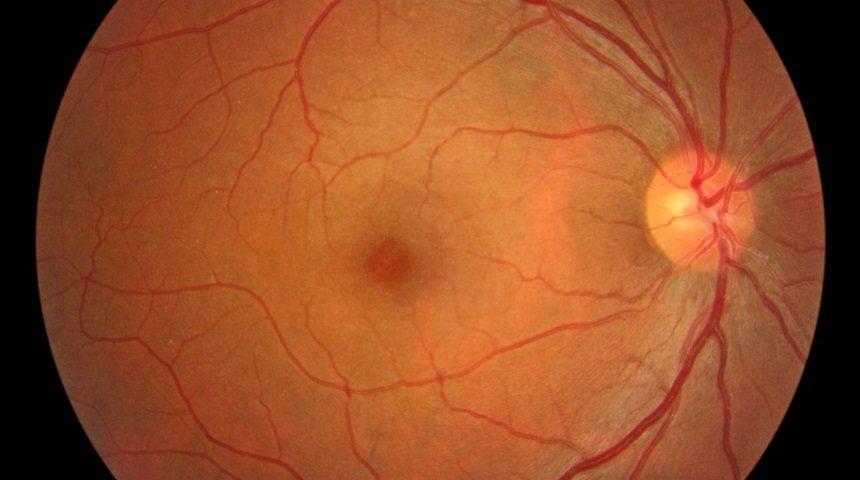 fondo-de-ojo-860x480