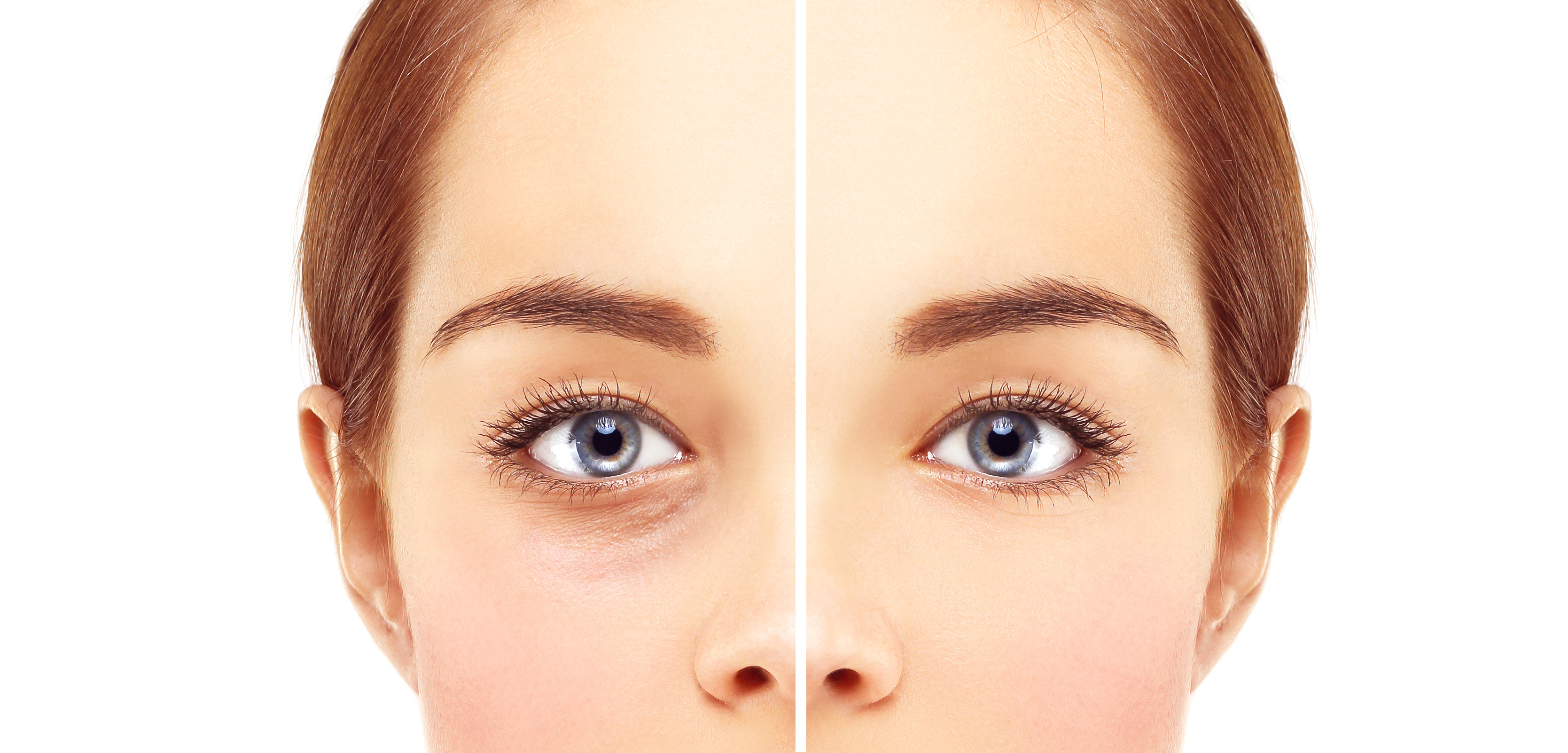 Lower-Eyelid Blepharoplasty.