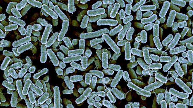 UTI bacteria