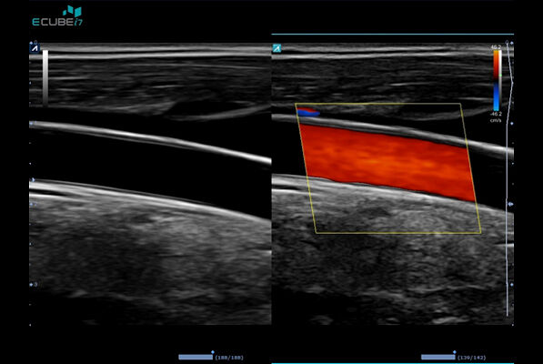 Common Caroid Artery in Dual Live mode