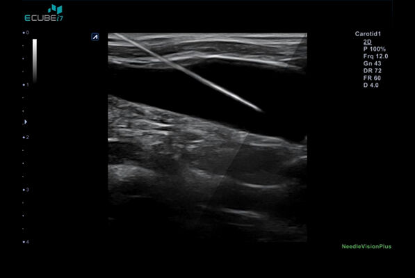 Internal Jugular vein injection with Needle Vision Plus