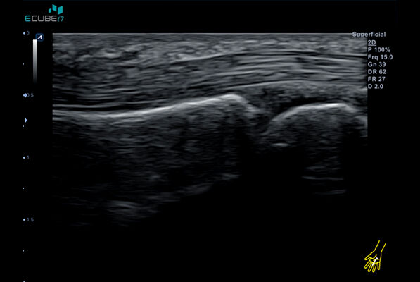 Superb detail delineation of MCP joint and its tendon with IO8-17T