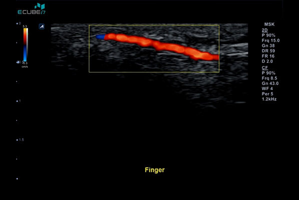 Superficial vessel of the finger in Color Flow