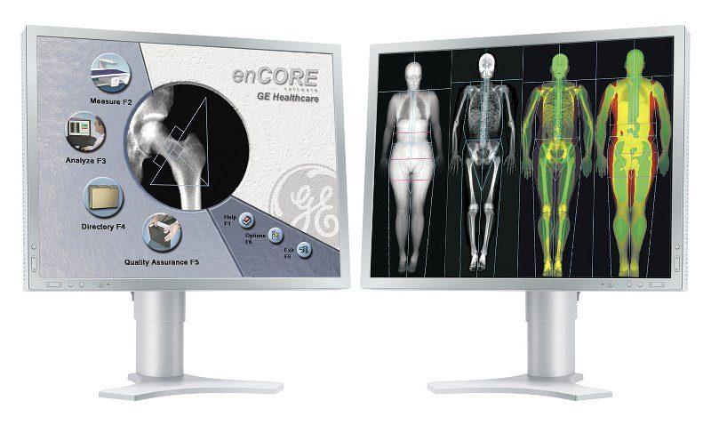 GE Lunar Encore Software