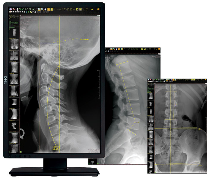 20/20 Imaging Chiro Software-PC