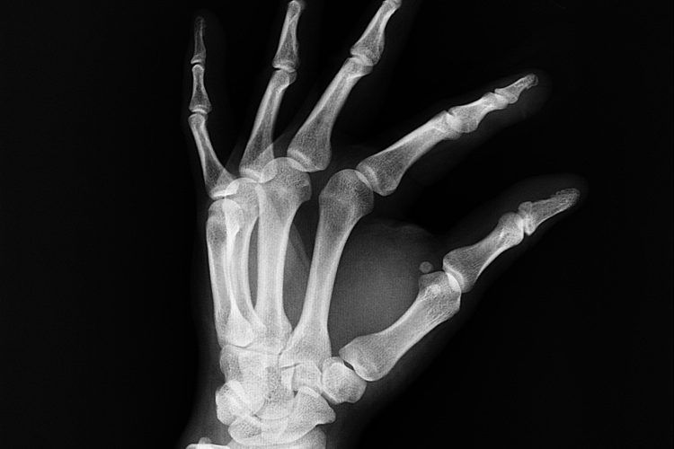Arthritis Osteoporosis Carpal tunnel syndrome rheumatism